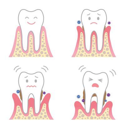 歯肉炎・歯垢を指摘されたら・・・