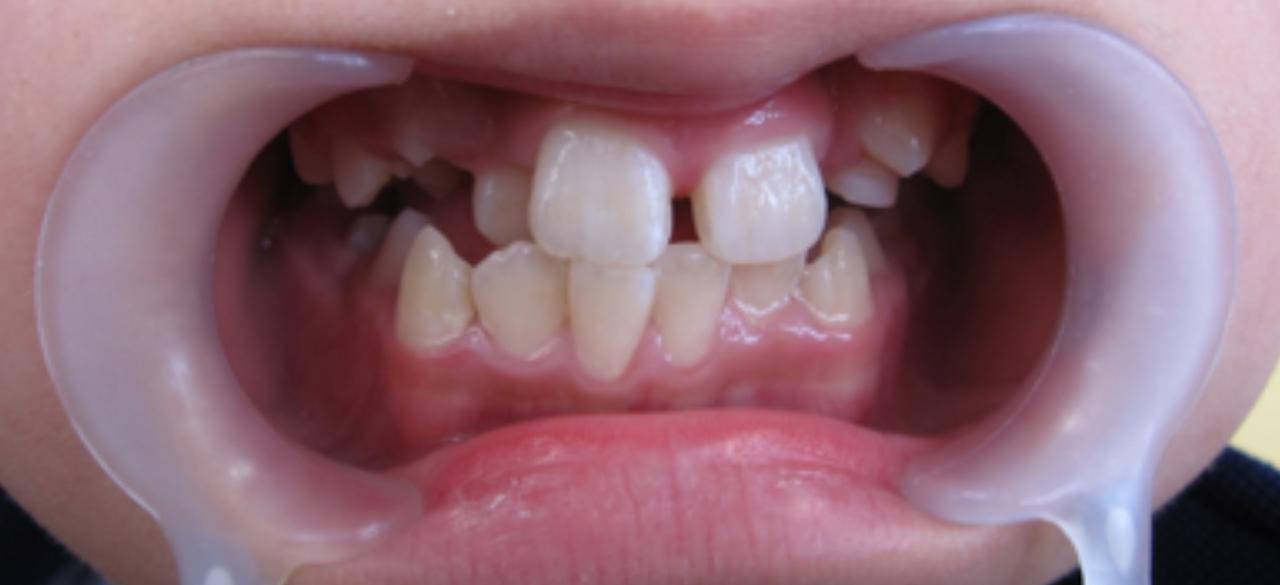 石巻 西村歯科医院のワイヤー矯正