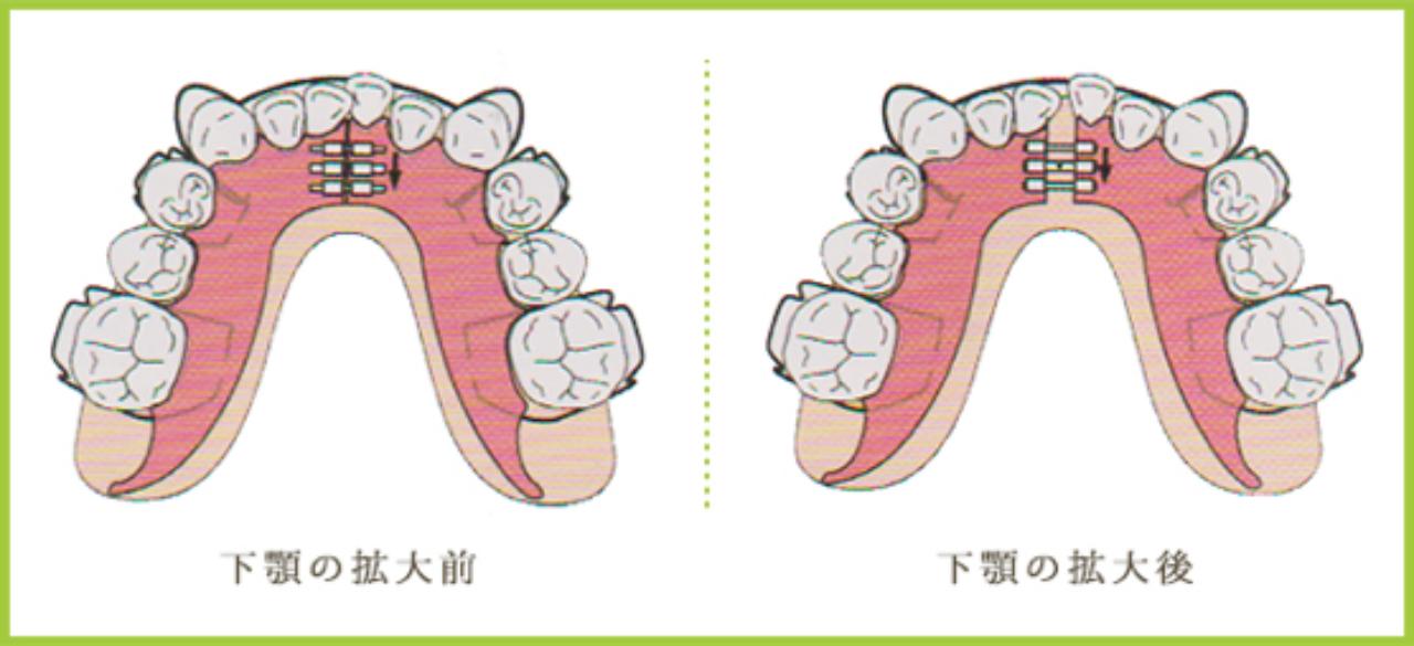 石巻 西村歯科医院の床矯正のメリットとデメリット