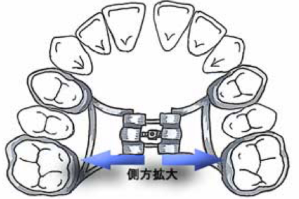 石巻 西村歯科医院の顎顔面矯正のメリットとデメリット