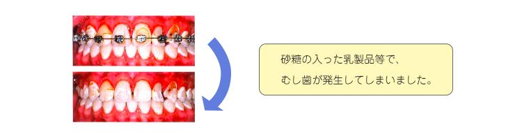blog0316_2
