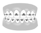 西村歯科医院 医院ブログ 20210521